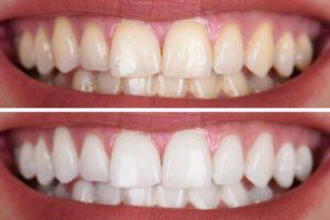 Prima e dopo pulizia denti