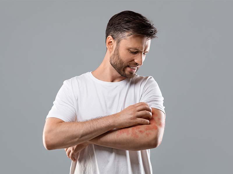 eczema nummulare