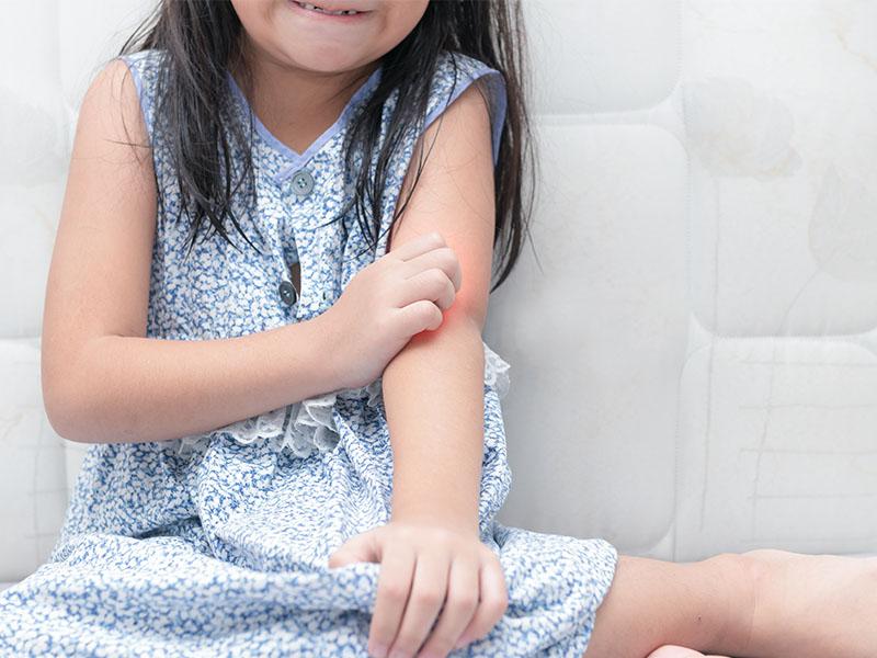 dermatite atopica bambini