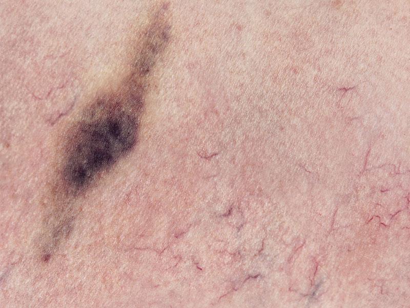 rottura capillari